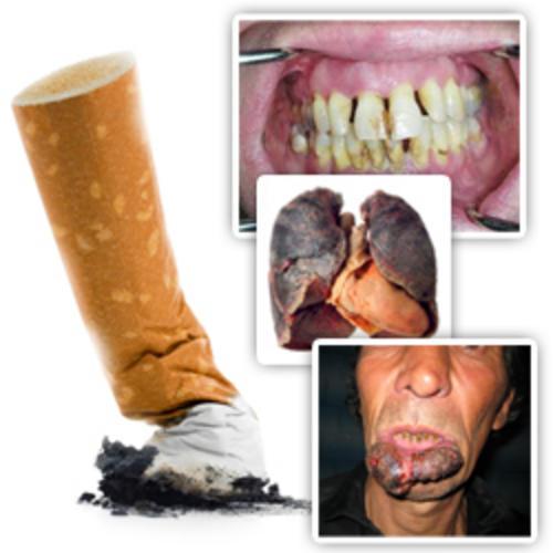 smoking diseases essay